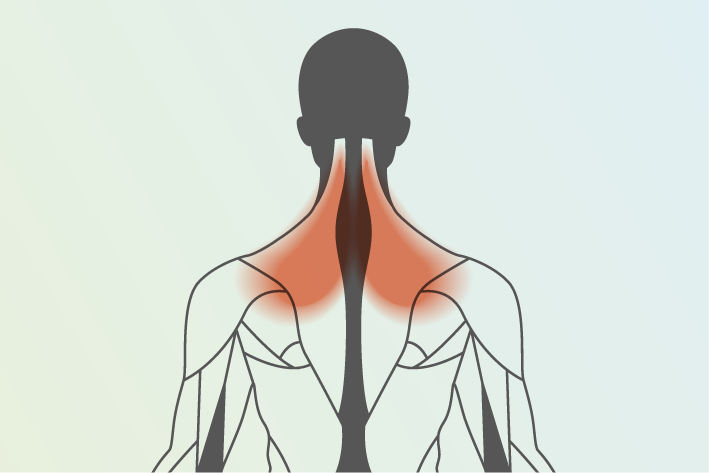 diagram of human body showing neck and shoulder pain