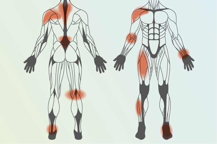 diagram of human body showing areas of pain caused associated with sport